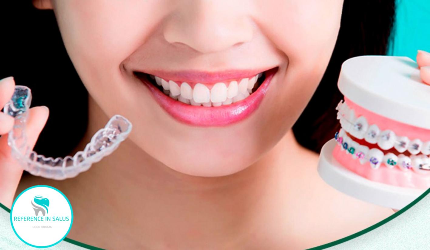 O Tratamento com aparelhos dentários